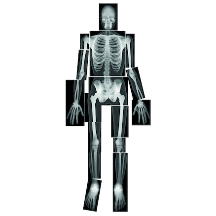 Child Size Human Body X Rays  large